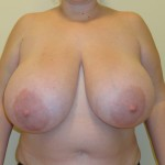 big_breast_antonio_tambuscio